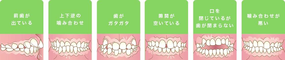 どのような歯並びでお悩みですか?